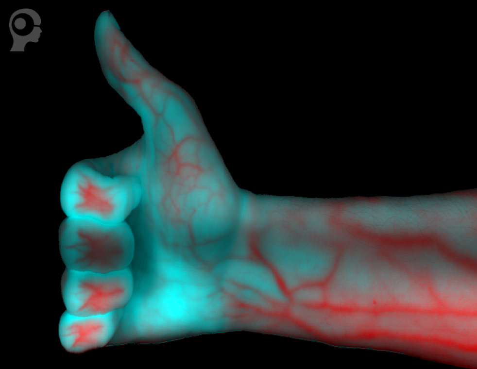 Chemical Color Image of a hand showing blood vessels inside